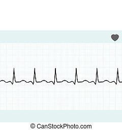 8, ecg., eps, electrocardiograma, normal