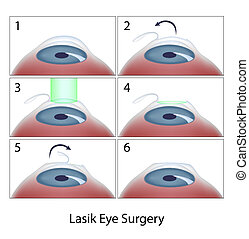 cirurgia lasik, procedimento, olho, eps10