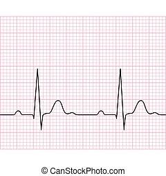 electrocardiograma, médico