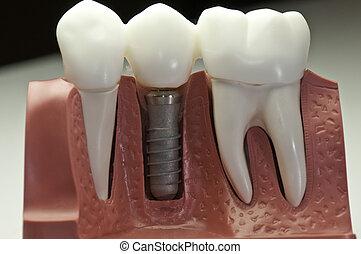 modelo, dental, implante, capped