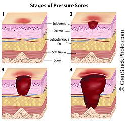 pressão, fases, sores, eps8