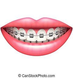 vetorial, alça, dentes, isolado, sorrizo, branca, mulher